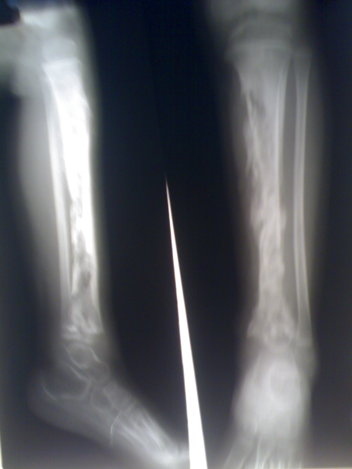 Management of Osteomyelitis « Diary of a Caribbean Med Student