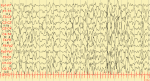 Hypsarrhythmia on EEG from Infantile Spasm