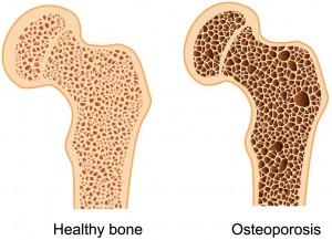 ostoeporosis